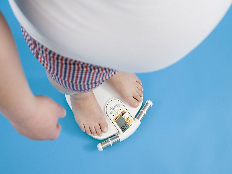 News Picture: Weight-Loss Surgery May Cut Pancreatic Cancer Risk in People With Diabetes